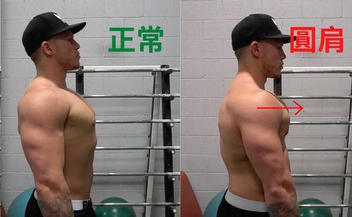 圓肩與正常示意圖