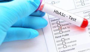 檢測是否有胰島素阻抗的方式